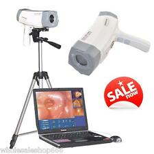 Digital Video SONY 800,000 Electronic Colposcope with Free Software Medical