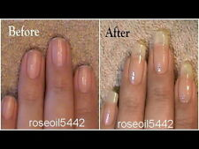 NAIL GROWTH & STRONG NAILS HARDENER RESTORE NAILS Amazing result