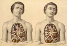 Framed Vintage Medical Print – Twins with Open Chests Exposing Internal Organs