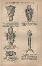 Lithografie 1894: DER KEHLKOPF DES MENSCHEN. Medizin Organe Zunge Krankheiten
