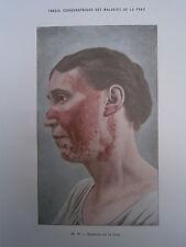 Gravure médecine couleur 1900 maladie de la peau : ECZEMA DE LA FACE