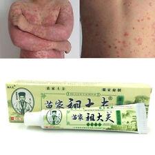 Psoriasi dermatite eczema prurito pelle China trattamento tradizionale medicina