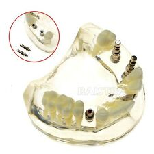 New 1 PC Dental Study Teaching Model Teeth Implant Model 2005 for sale free ship
