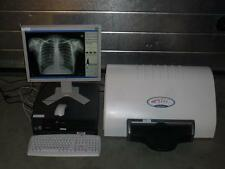 Kodak Orex PcCR 1417 ACL4 Digital X-ray Röntgen Imaging Fosfor Scanner Digitizer