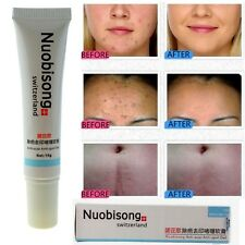 NUOBISONG Face Treatment Gel Acne Scar Blemish Removal Stretch Marks Cream