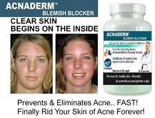 3x Acnaderm Acne Pills Clear Skin Blemishes Scars Blackheads Detox Spots Zits