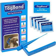 Micro TagBand Skin Tag Remover Device For a Fast & Effective Skintag Treatment