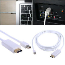 1.8m DP Mini DisplayPort Display Port to HDMI Cable For Mac iMac Macbook Air Pro