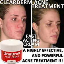 CLEARDERM ACNE CREAM LOTION HIGH STRENGTH NATURAL INGREDIENTS CLEAR SKIN !