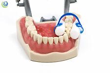 Dental Disposable Cotton Roll Holder Clip Isolator Non-sterile