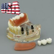 US Dental Implant Restoration Lower Jaw Teeth Model with Removable Bridge 6006