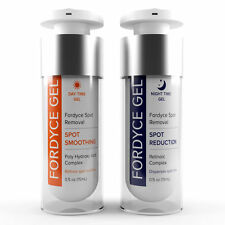 FORDYCE SPOTS REMOVAL CREAM. Best Home Therapy for Men and Women Fast & Painless