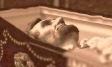 Abraham Lincoln , Close up of Lincoln in his casket