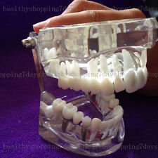 Removable Dental Teeth Study Teach Typodont Adult Model W/ Implant Demonstration