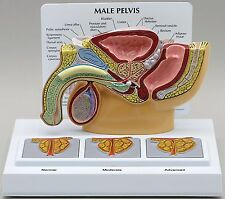Male Pelvis Anatomical Model 3D Cross-Section BPH w Key Card  LFA #3551 CEM