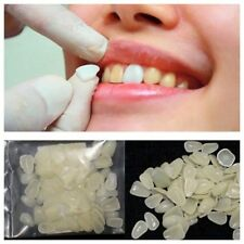 100 Pcs Dental Ultra-Thin Whitening Veneers Resin Teeth Upper Anterior Shade