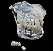 Removable Dental Implant Disease Teeth Restoration & Bridge Tooth Teaching Model