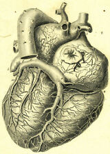 Framed Vintage Medical Print – The Human Heart (Picture Surgery Anatomy Art)