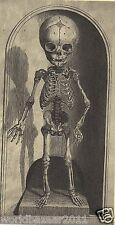 Impresión VICTORIANO anatomía del cuerpo médico cirujano Gótico Esqueleto Ciencia Medicina