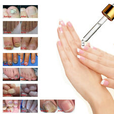 Anti Fungal Nail Treatment 10ml Toe Nail Finger Fungus Infection NATURAL Cure L8