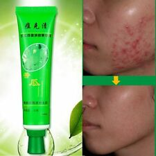 Lady Face Treatment Care Acne Scar Removal Cream Blemish Stretch Marks Whitening