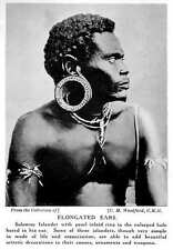 1913 Man Of Solomon Islands With Enlarged Hole, Elongated Ears