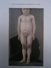 Gravure médecine couleur 1900 maladie de la peau : ICHTHYOSE