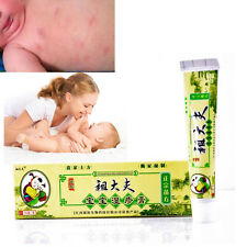 Psoriasis Eczema Cream Herbal Dermatitis Ointment For Baby Moisturizing Ringworm
