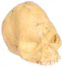 Dented Skull : Doll House Miniature Cranium Ideal For Halloween, Graveyard