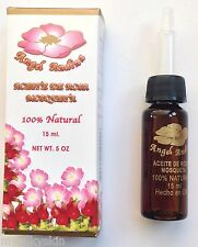 Chilean Rose hip oil / Aceite de Rosa Mosqueta (2 vials) GREAT DEAL!!!