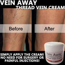 Vein AWAY CREMA LOZIONE ANTI VARICOSE SPIDER Thread venatura 100% naturale a base di erbe