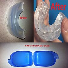 Stop Snoring CUSTOM-FIT MouthPiece Anti Snore Sleep Apnea Boil and Bite Guard
