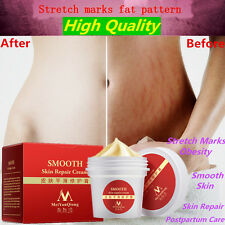 Stretch Marks & Scars Cream - Best for Stretch Mark Removal - Body Moisturizer #
