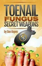 Toenail Fungus Secret Weapons : Uncover over 14 Toenail Fungus Treatments...