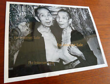 Ultra Rare 1948 Photo Chinese Siamese Conjoined Twins Nude Naked Circus, Medical