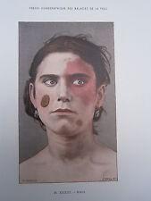 Gravure médecine couleur 1900 maladie de la peau : NOEVI