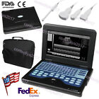 Fda Ce 10.1 Inch Portable Ultrasound Scanner Laptop Machine Cms600p2 For Human