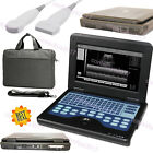 Usaportable Ultrasound Scanner Laptop Machine Convexlinearcardiactranvaginal