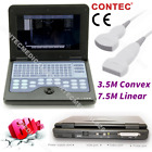 Portable Ultrasound Scanner Laptop Machine Convexlinearcardiactranvaginalusa