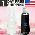 USB Recharge Ultrasonic Scrubber Skin Spatula Facial Cleaner Peeling Massage Spa