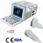 3d Portable Ultrasonic Ultrasound Scanner Diagnose Machine Optional Probes Fda