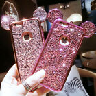 Cute Disney Mickey Minnie Mouse Ears Soft TPU Cover Case for iPhone