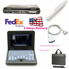 Fda Ce Portable Ultrasound Scanner Laptop Machine Cms600p2 For Human 10.1 Inch
